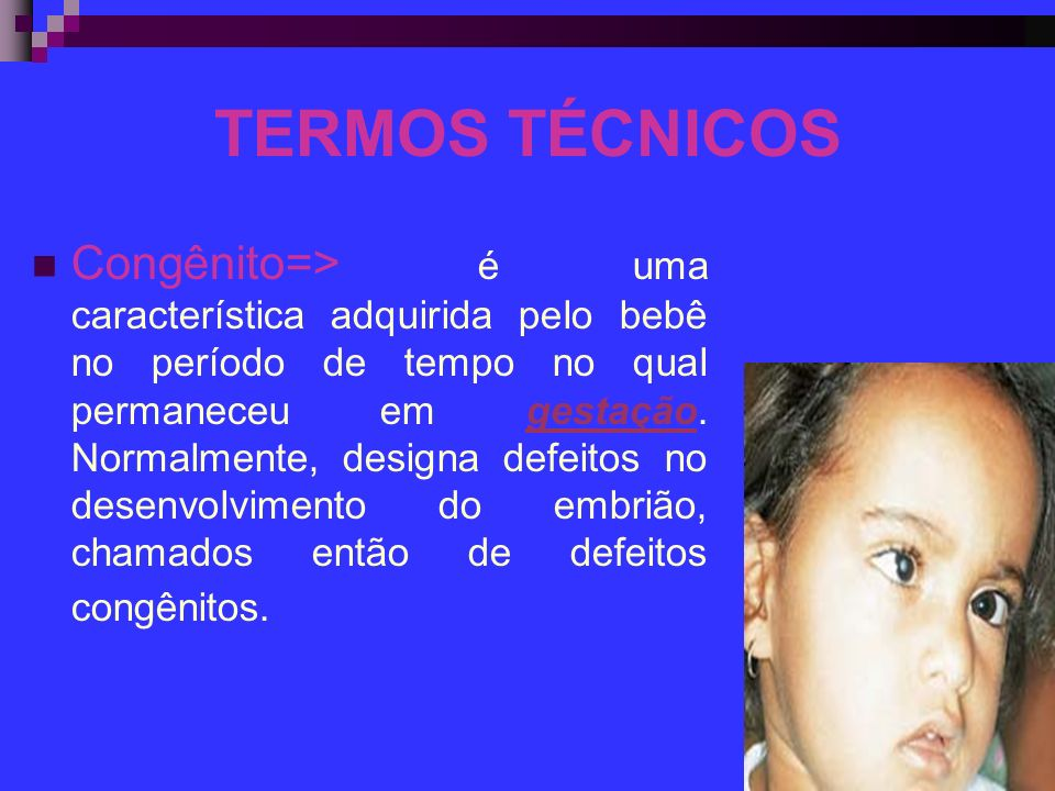 TERMOS TÉCNICOS