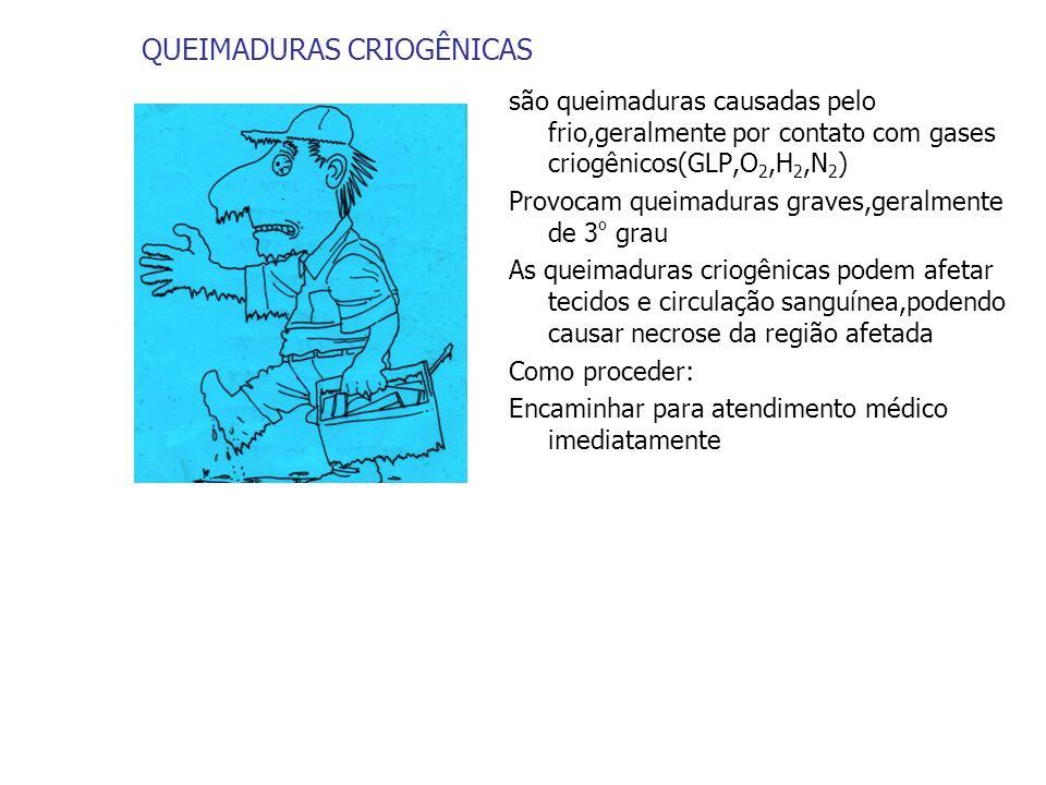 QUEIMADURAS CRIOGÊNICAS