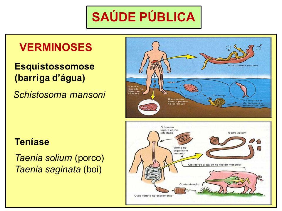 SAÚDE PÚBLICA VERMINOSES Esquistossomose (barriga d'água)