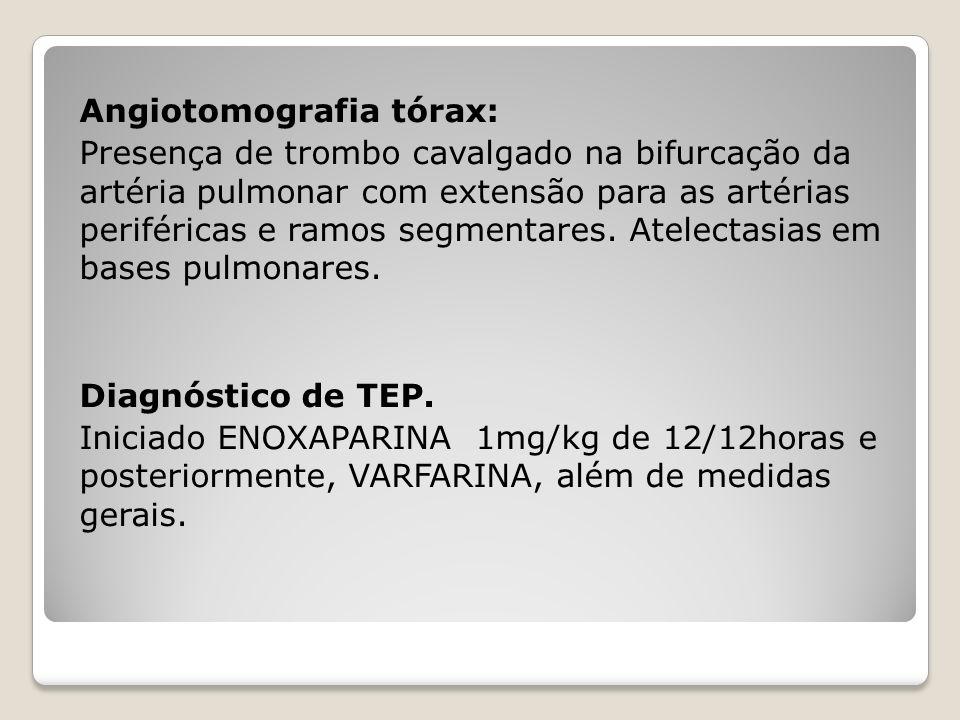 Angiotomografia tórax: Presença de trombo cavalgado na bifurcação da artéria pulmonar com extensão para as artérias periféricas e ramos segmentares.