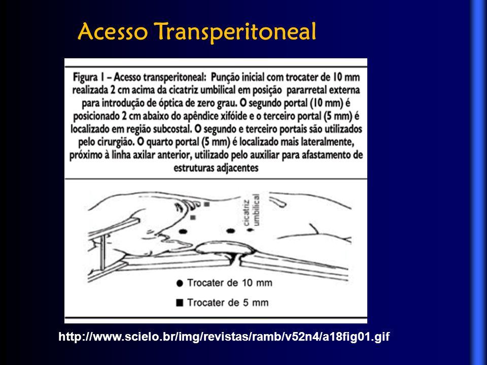 Acesso Transperitoneal