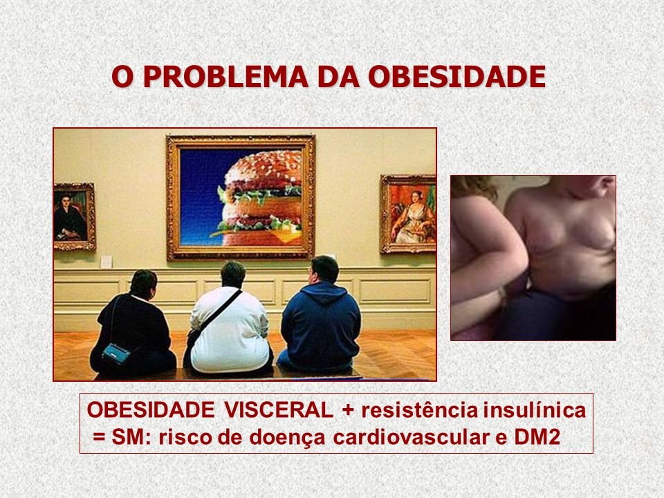O PROBLEMA DA OBESIDADE