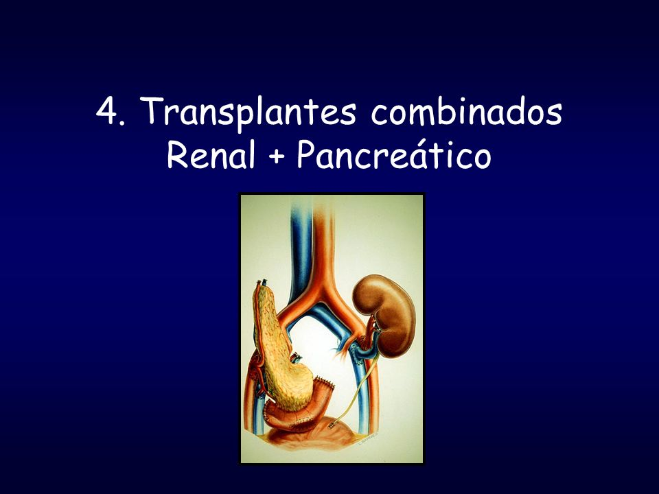 4. Transplantes combinados Renal + Pancreático
