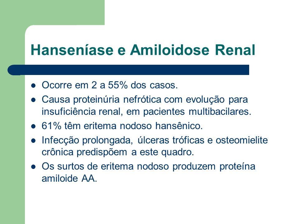 Hanseníase e Amiloidose Renal