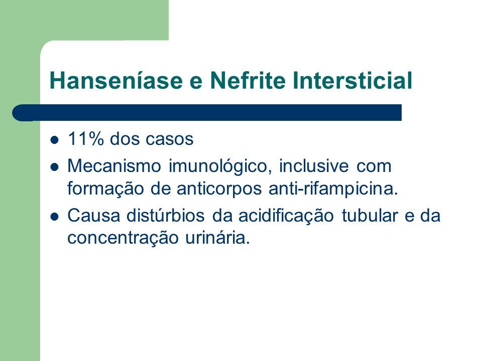 Hanseníase e Nefrite Intersticial