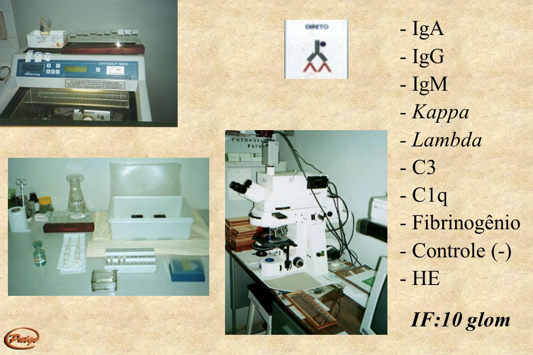 - IgA - IgG - IgM - Kappa - Lambda - C3 - C1q - Fibrinogênio - Controle (-) - HE IF:10 glom