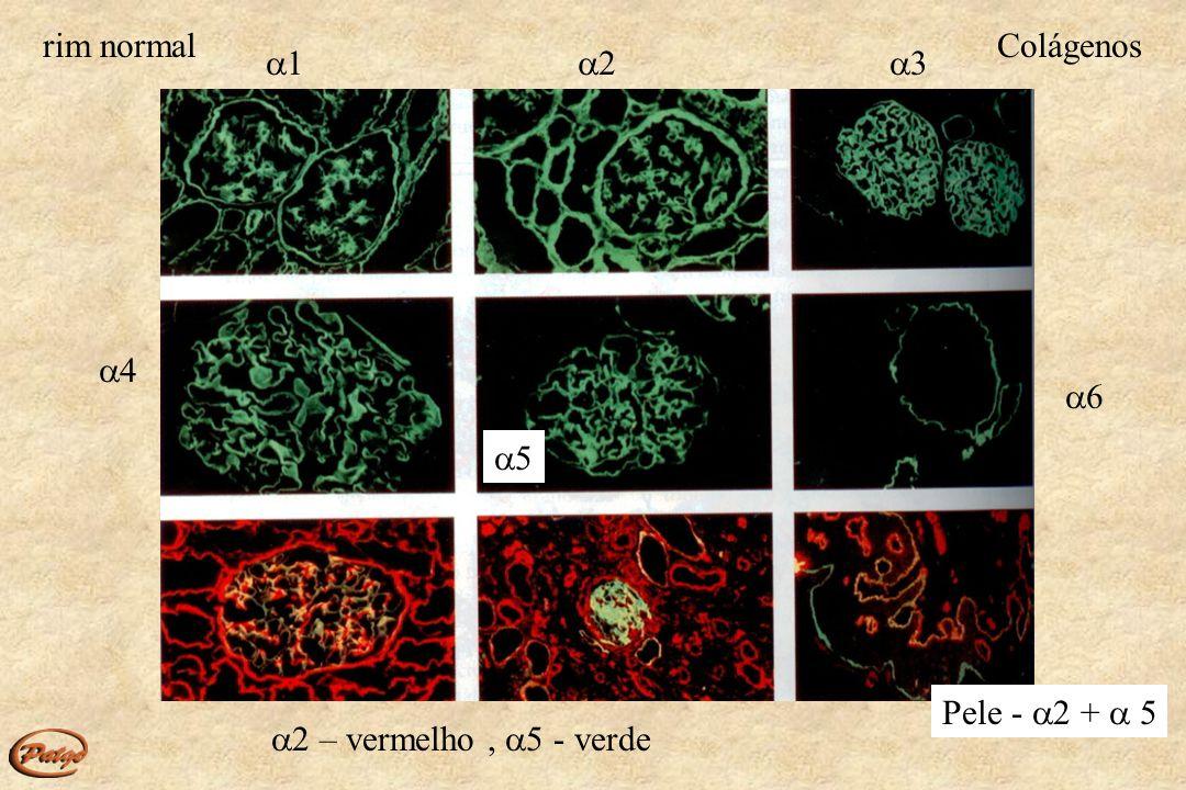 rim normal Colágenos 1 2 3 4 6 5 Pele - 2 +  5 2 – vermelho , 5 - verde