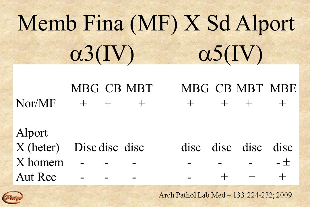 Memb Fina (MF) X Sd Alport 3(IV) 5(IV)