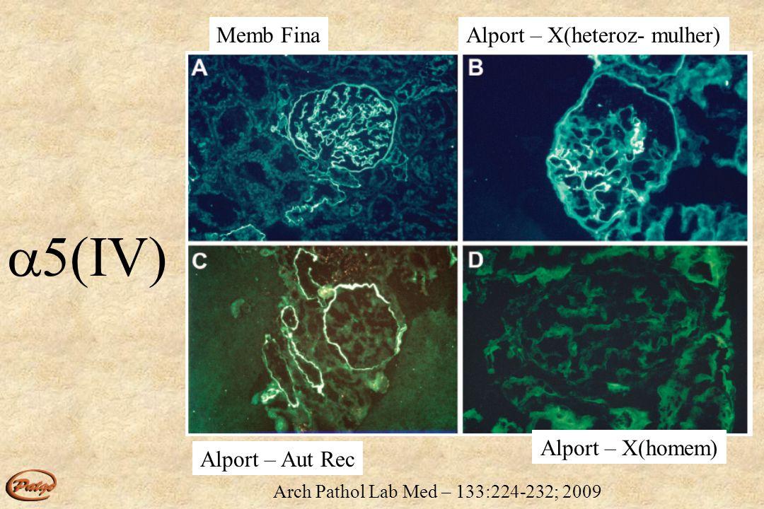 5(IV) Memb Fina Alport – X(heteroz- mulher) Alport – X(homem)
