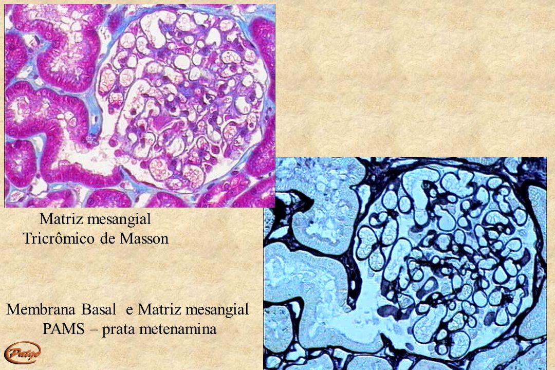 Membrana Basal e Matriz mesangial PAMS – prata metenamina