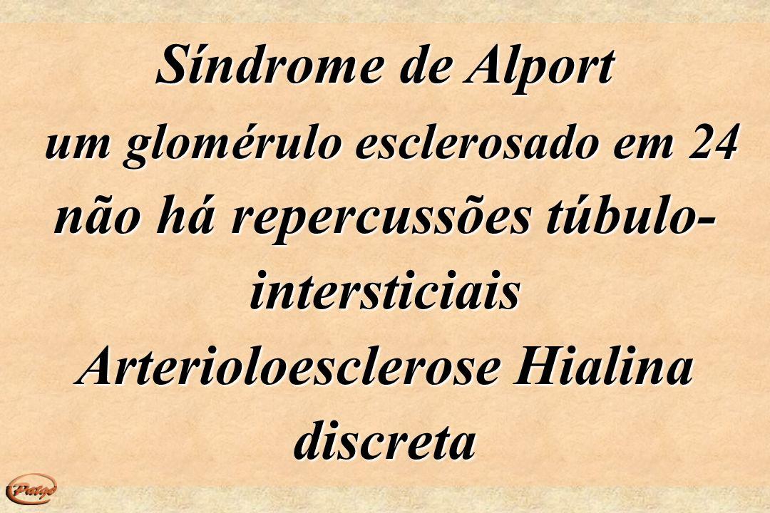 um glomérulo esclerosado em 24