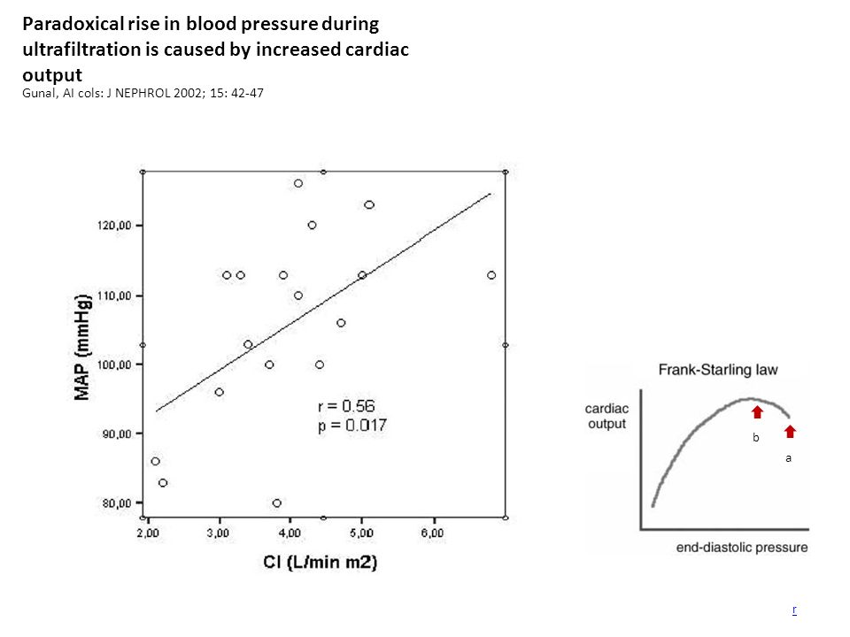 Paradoxical rise in blood pressure during ultrafiltration is caused by increased cardiac output