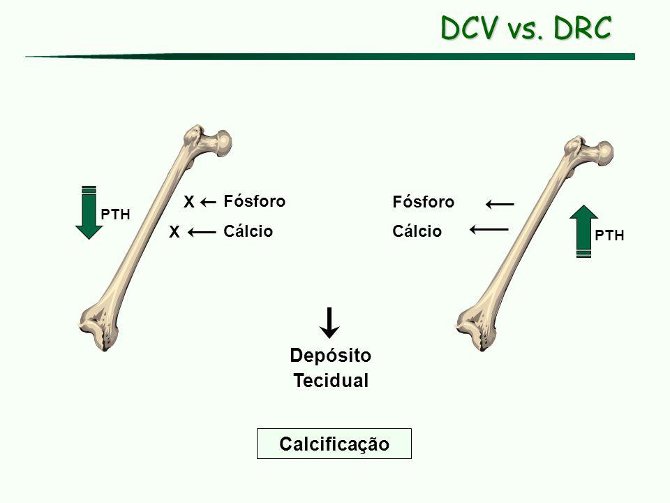 DCV vs. DRC Depósito Tecidual Calcificação X Fósforo Fósforo X Cálcio