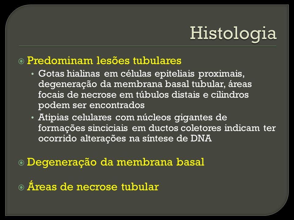 Histologia Predominam lesões tubulares Degeneração da membrana basal