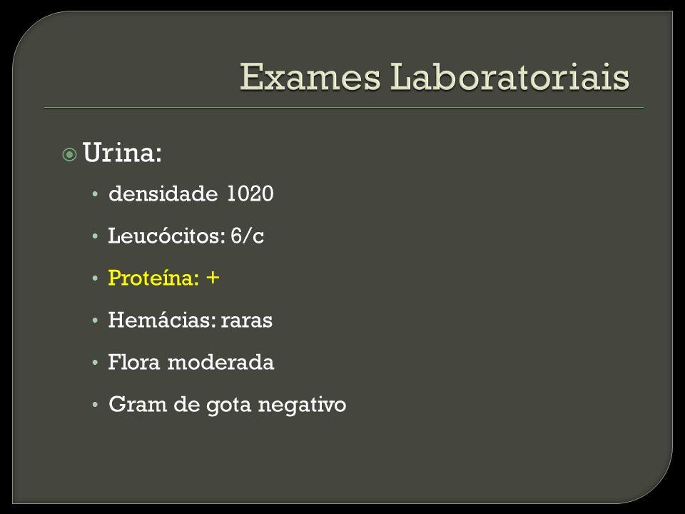 Exames Laboratoriais Urina: densidade 1020 Leucócitos: 6/c Proteína: +