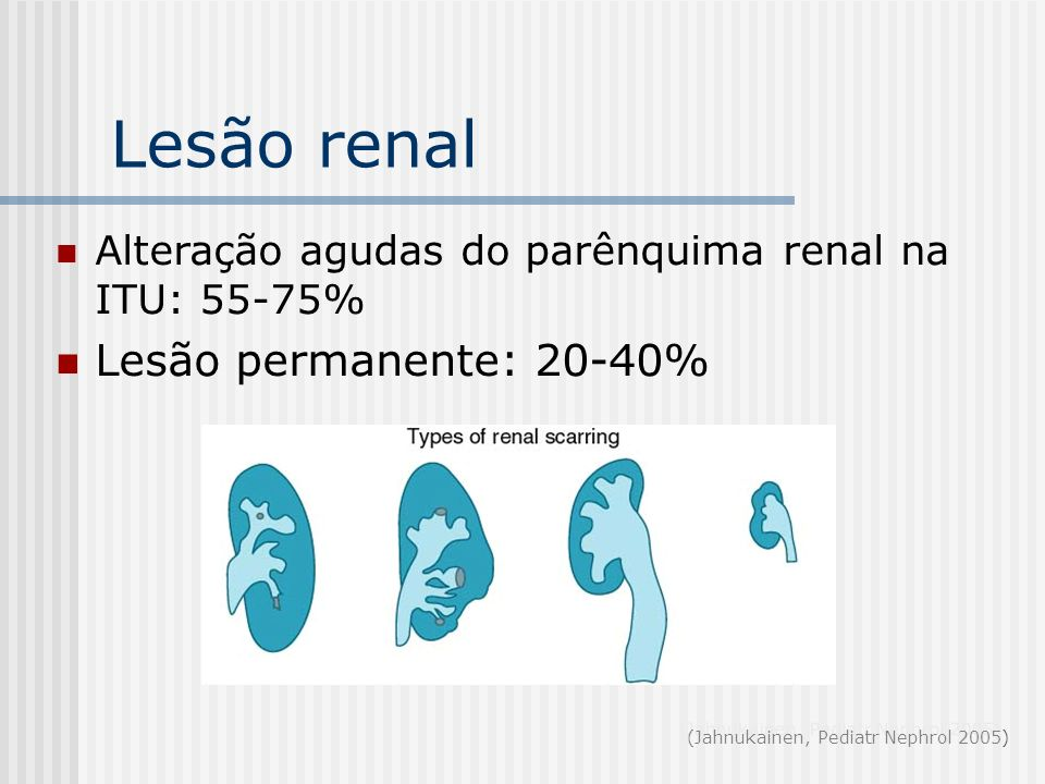 Lesão renal Lesão permanente: 20-40%