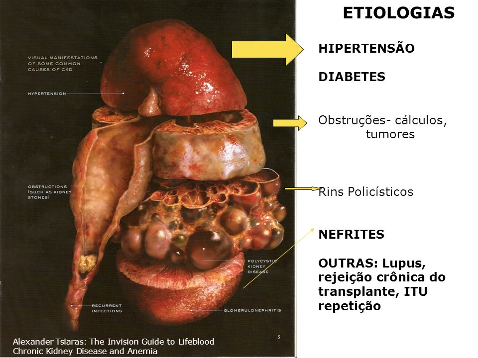 Obstruções- cálculos, tumores