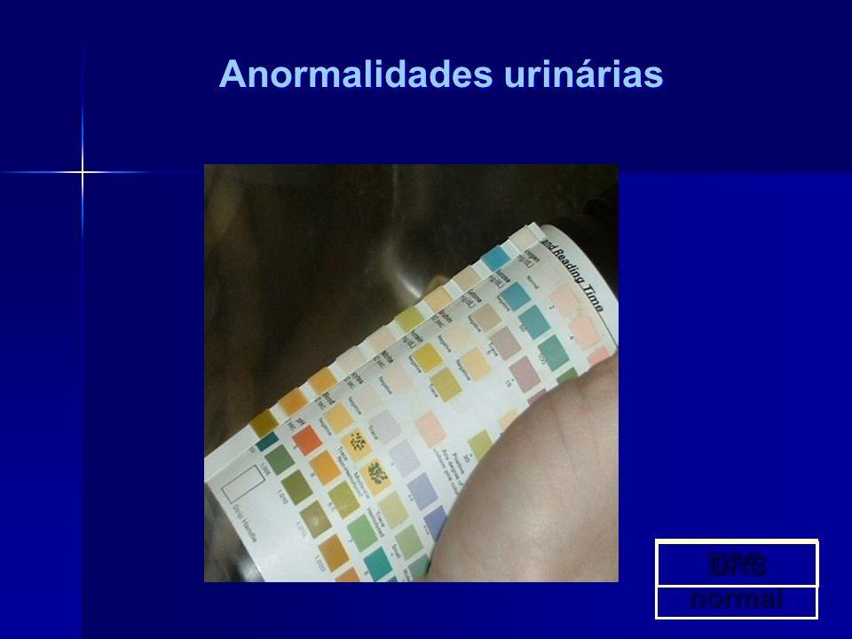 Anormalidades urinárias