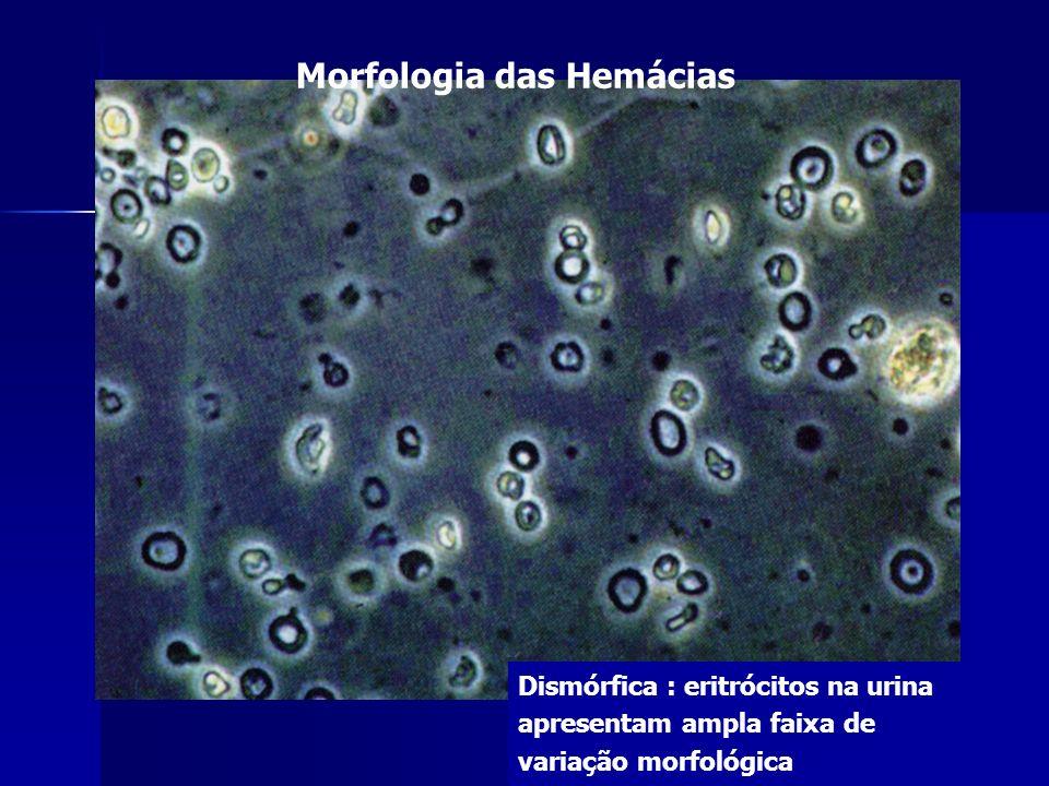 Morfologia das Hemácias