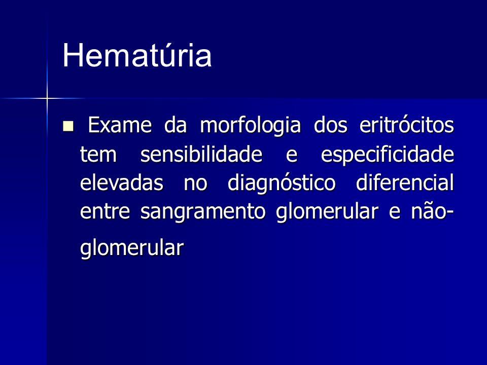 Hematúria