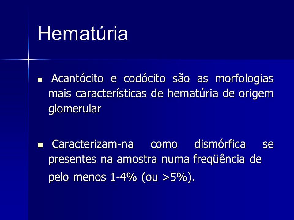 Hematúria Acantócito e codócito são as morfologias mais características de hematúria de origem glomerular.