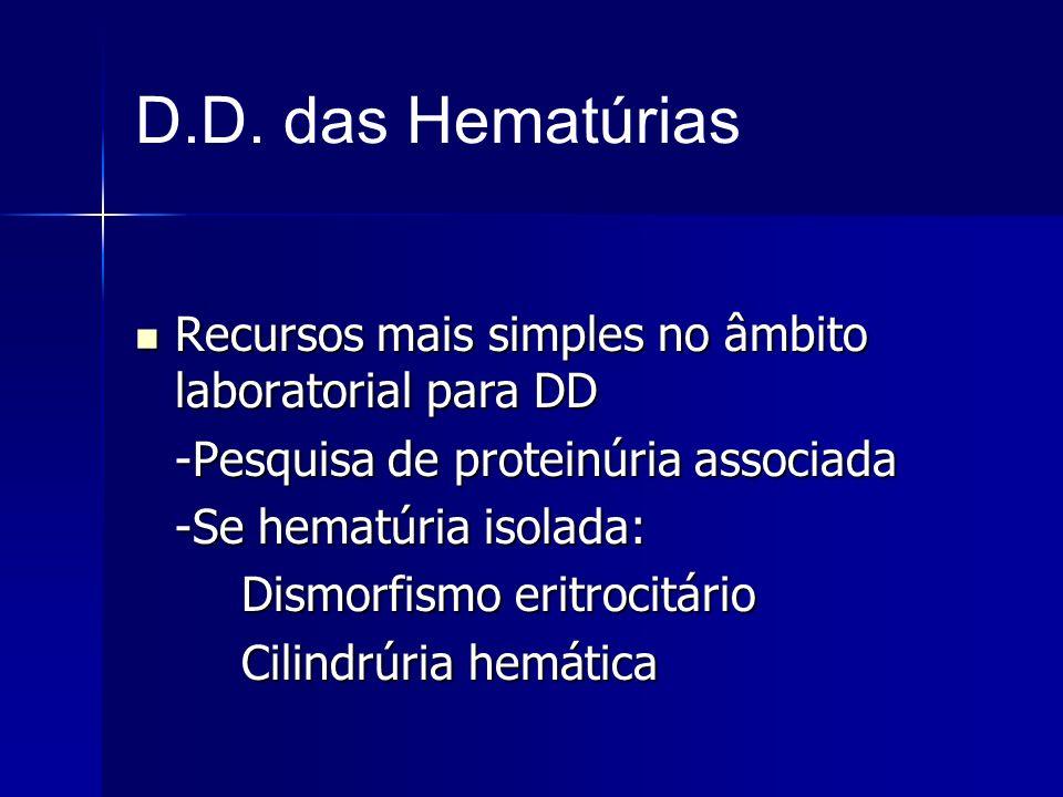 D.D. das Hematúrias Recursos mais simples no âmbito laboratorial para DD. -Pesquisa de proteinúria associada.