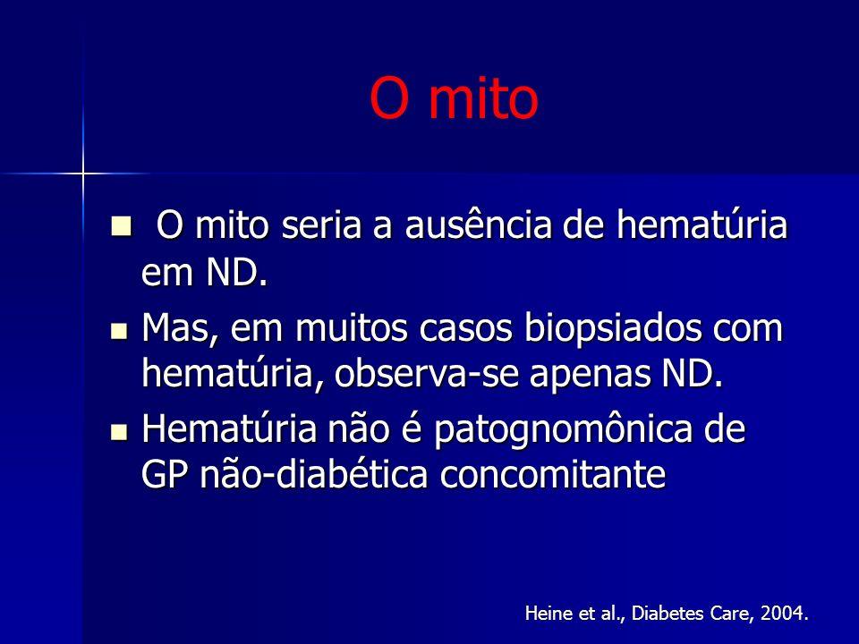 O mito O mito seria a ausência de hematúria em ND.