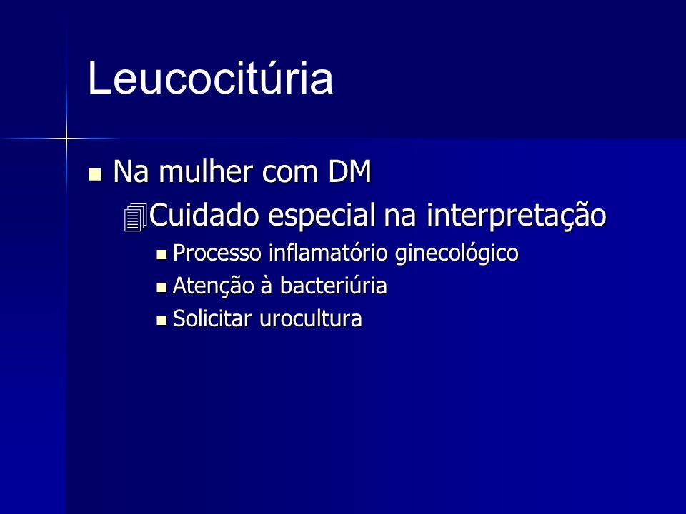 Leucocitúria Na mulher com DM Cuidado especial na interpretação