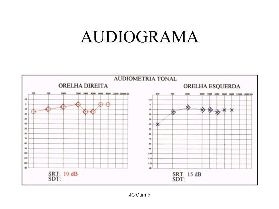AUDIOGRAMA JC Carmo