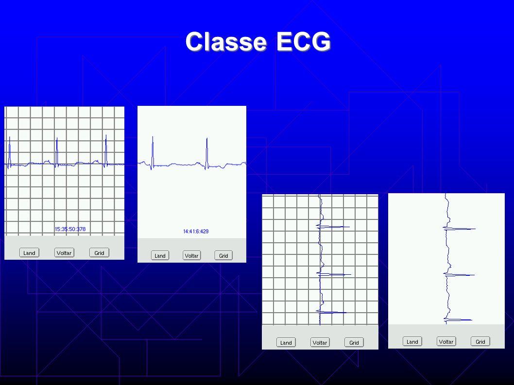 Classe ECG