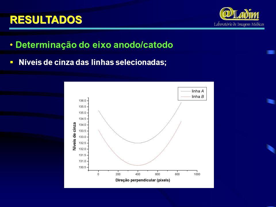 RESULTADOS Determinação do eixo anodo/catodo