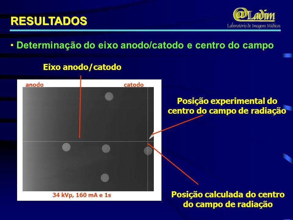 RESULTADOS Determinação do eixo anodo/catodo e centro do campo