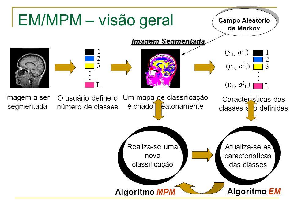 EM/MPM – visão geral . . Algoritmo MPM Algoritmo EM Imagem Segmentada