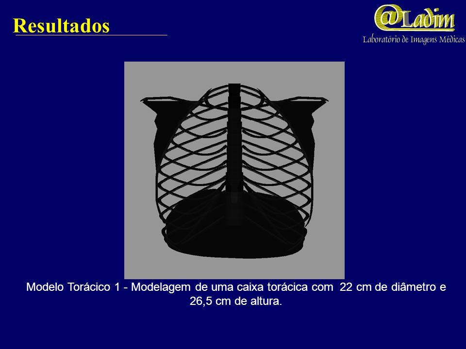 Resultados Modelo Torácico 1 - Modelagem de uma caixa torácica com 22 cm de diâmetro e 26,5 cm de altura.
