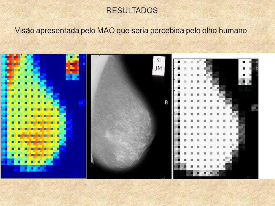Visão apresentada pelo MAO que seria percebida pelo olho humano: