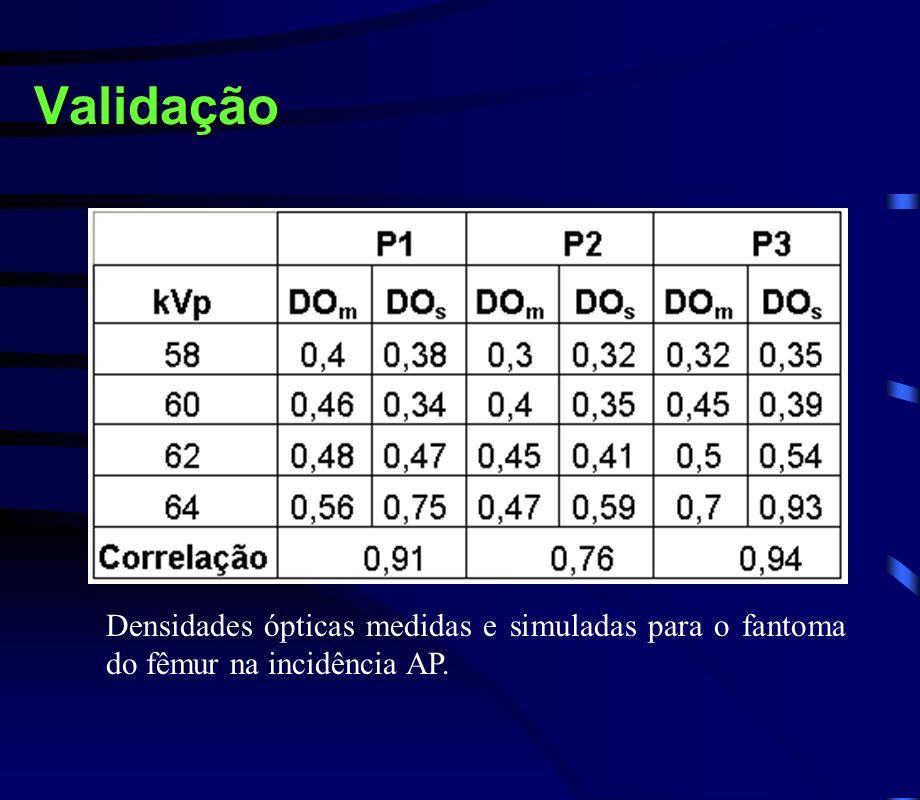 Validação Densidades ópticas medidas e simuladas para o fantoma do fêmur na incidência AP.