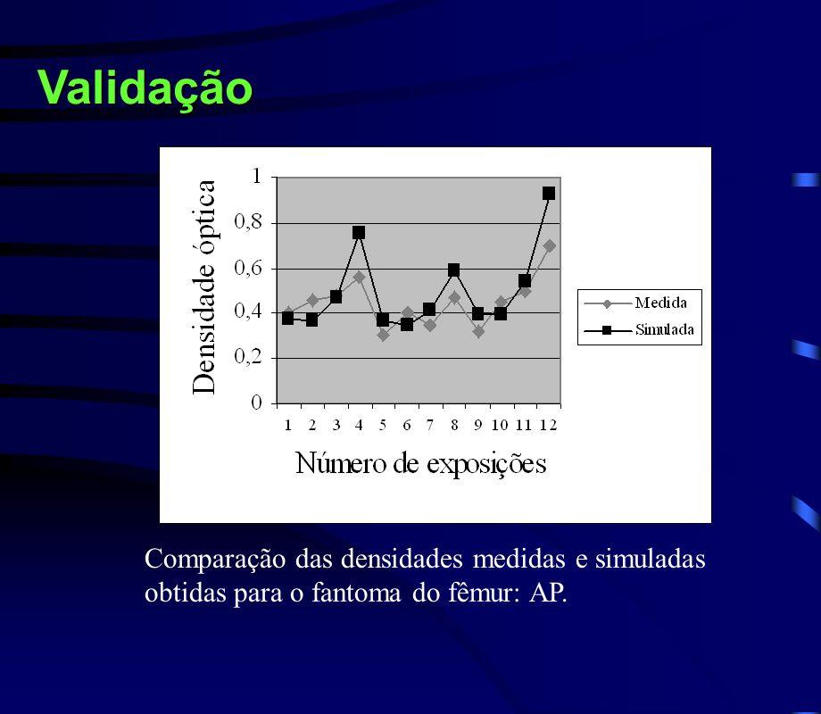 Validação Comparação das densidades medidas e simuladas obtidas para o fantoma do fêmur: AP.