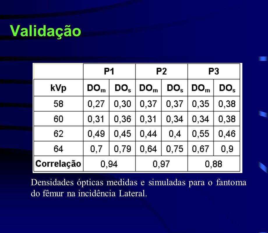 Validação Densidades ópticas medidas e simuladas para o fantoma do fêmur na incidência Lateral.