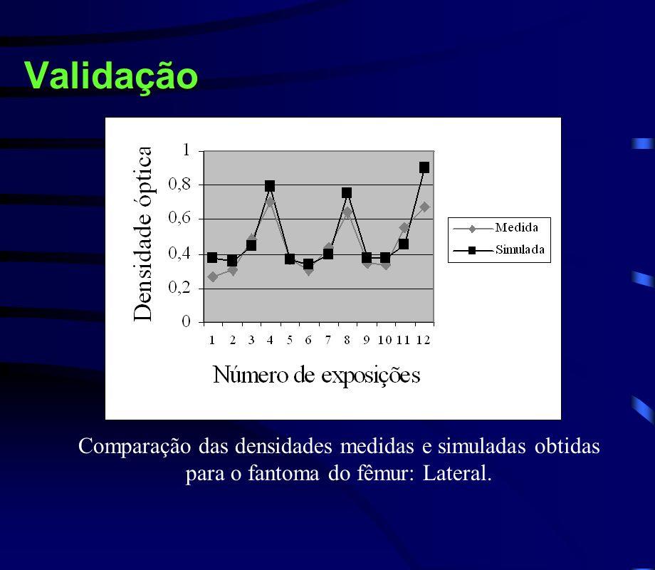 Validação Comparação das densidades medidas e simuladas obtidas para o fantoma do fêmur: Lateral.