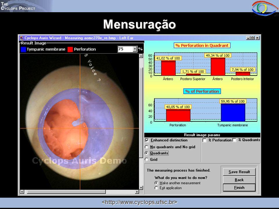 Mensuração <http://www.cyclops.ufsc.br>