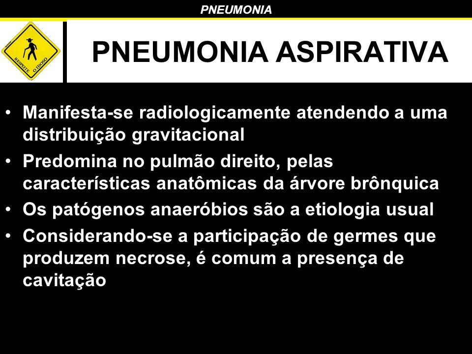 PNEUMONIA ASPIRATIVA Manifesta-se radiologicamente atendendo a uma distribuição gravitacional.