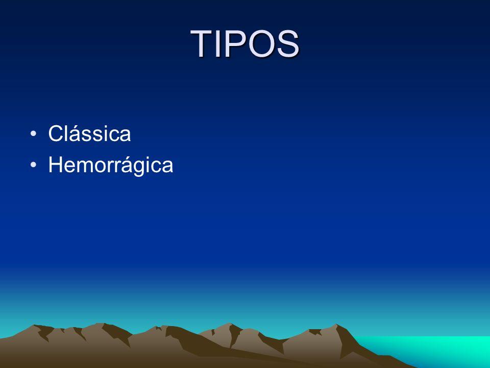 TIPOS Clássica Hemorrágica