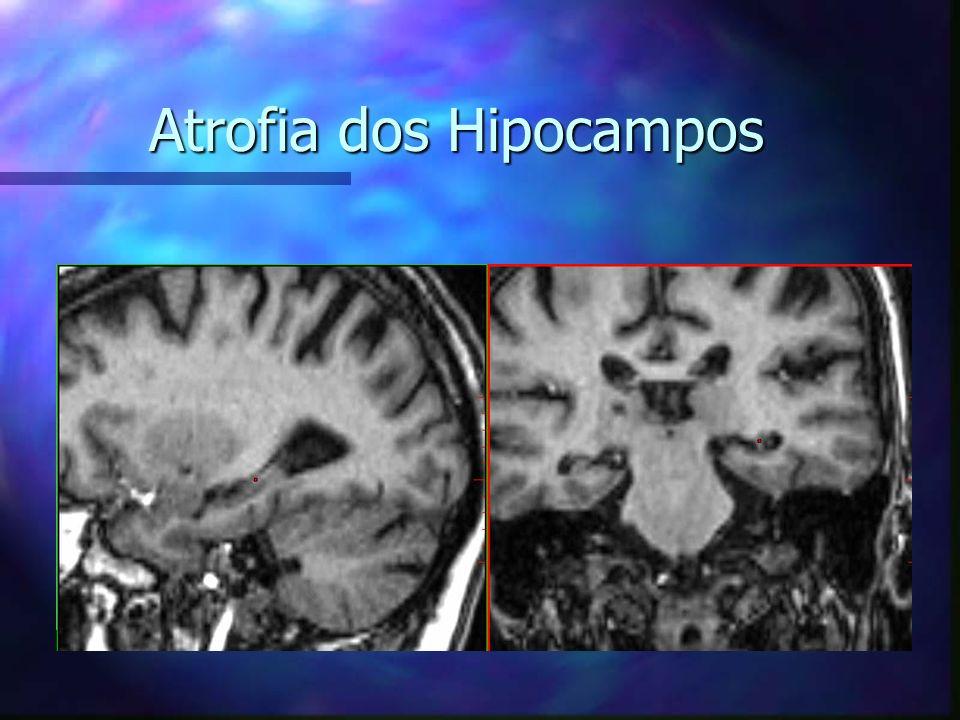 Atrofia dos Hipocampos