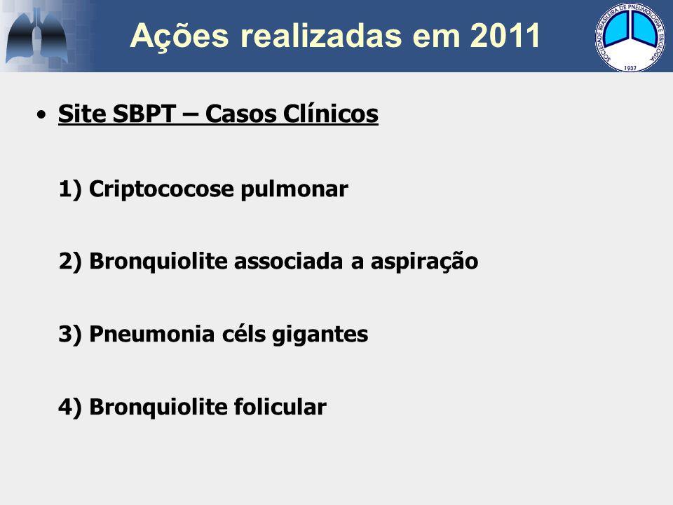 Ações realizadas em 2011 Site SBPT – Casos Clínicos