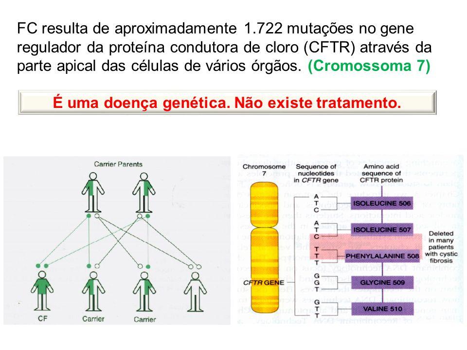 É uma doença genética. Não existe tratamento.