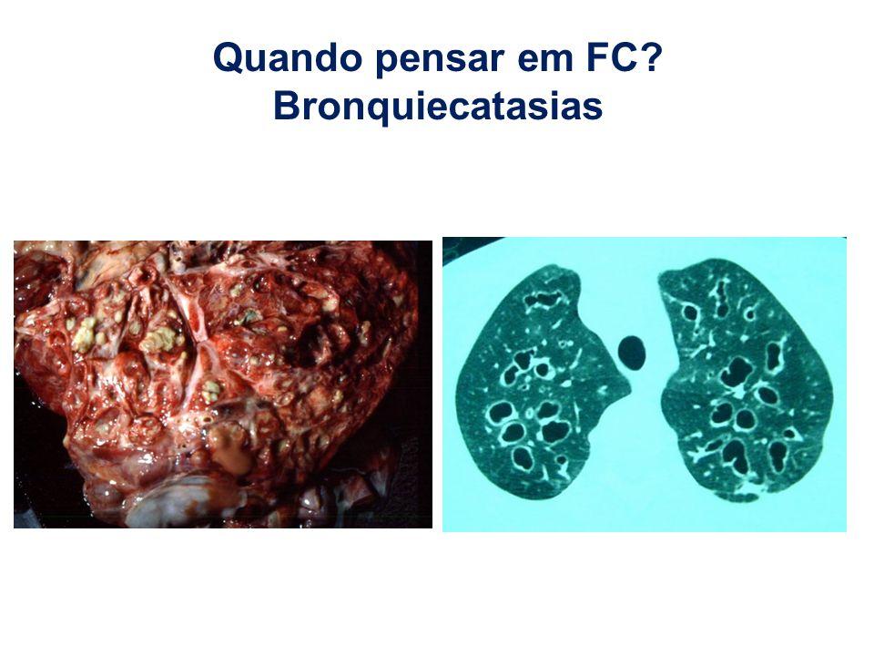Quando pensar em FC Bronquiecatasias