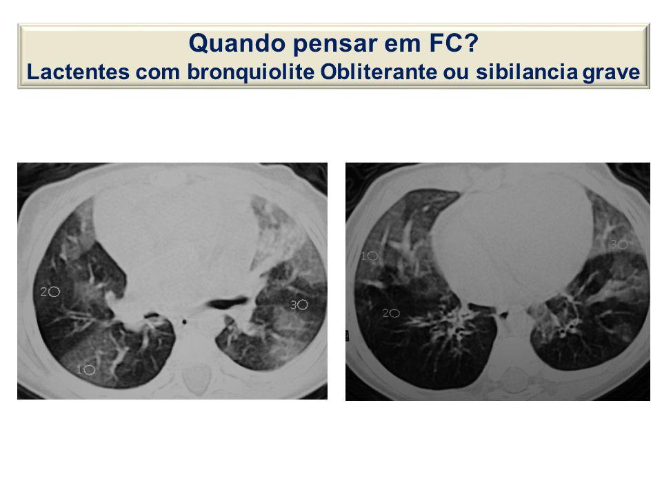 Lactentes com bronquiolite Obliterante ou sibilancia grave