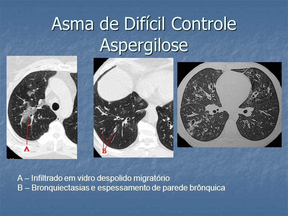 Asma de Difícil Controle Aspergilose