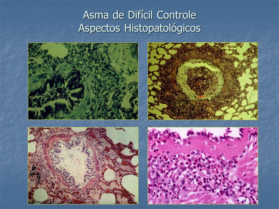 Asma de Difícil Controle Aspectos Histopatológicos
