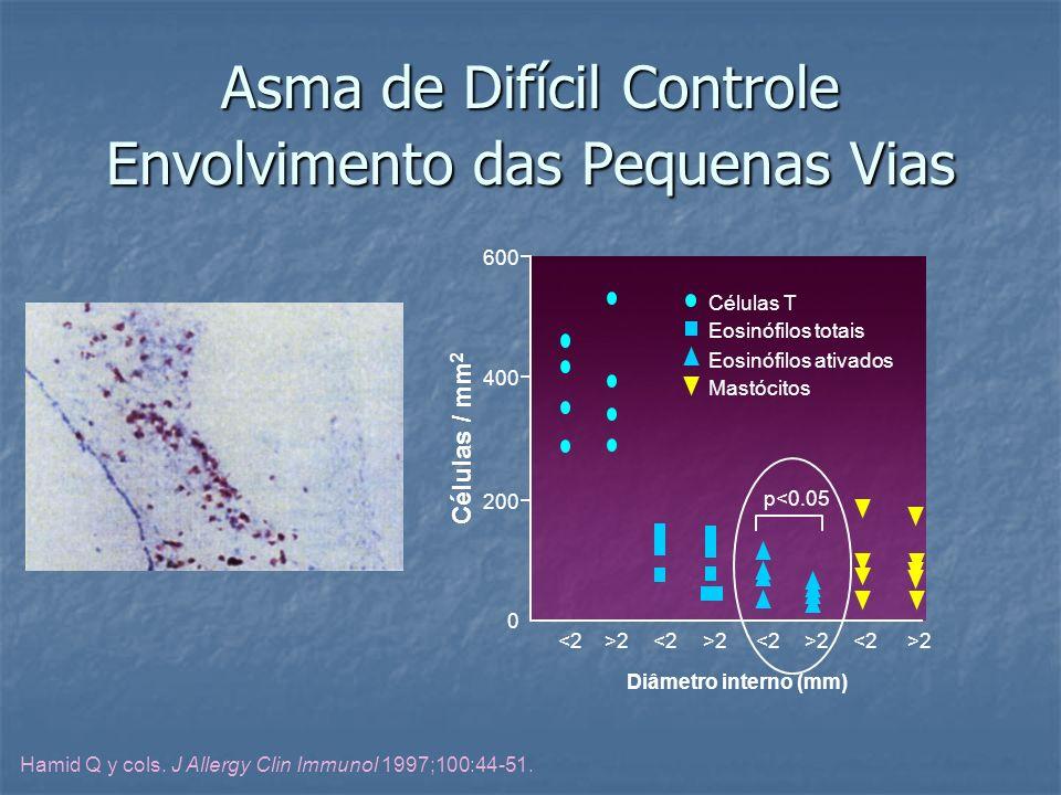 Asma de Difícil Controle Envolvimento das Pequenas Vias
